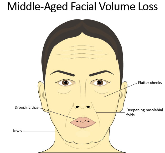 Depiction of middle-aged facial volume loss and common trouble areas: jowls, flattening cheeks, deepening nasolabial folds, and thinner lips.