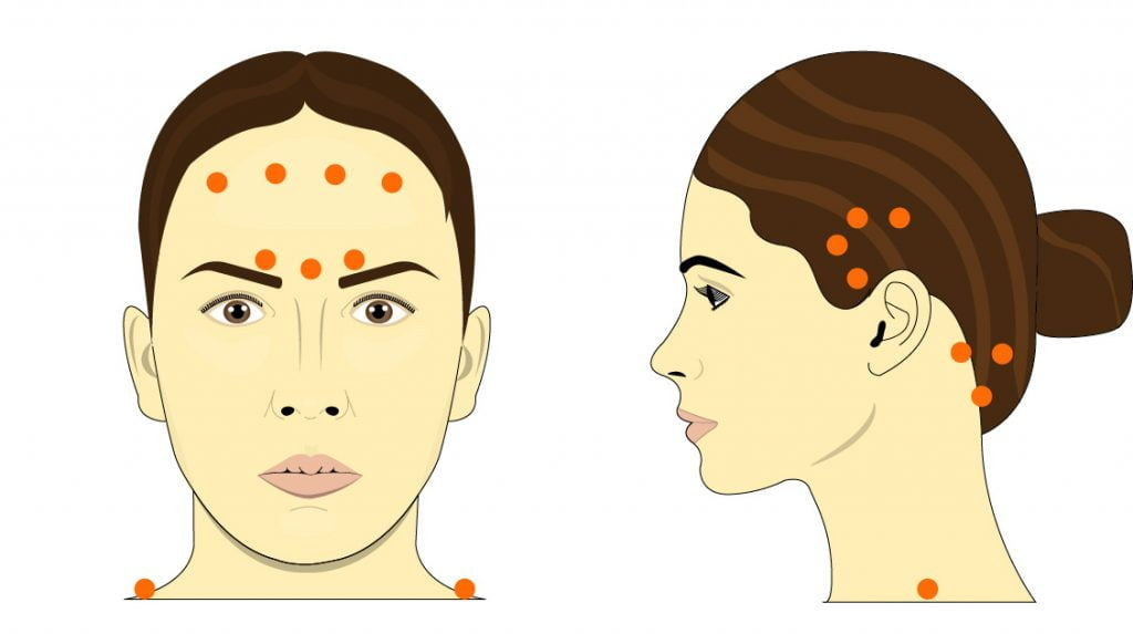 Image demonstrating botox treatment for migraines. It shows several of the common botox injection areas used to treat migraines: around the forehead, between the eyes, around the temple and at the base of the skull.